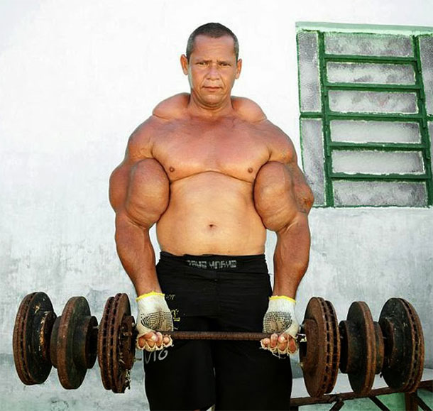 Synthol: what is it, how does it work • roidsmall shop